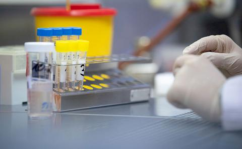 Kyrgyzstan to purchase 50 thsd tests to diagnose coronavirus