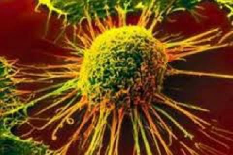 Identifying cancer progression possible with Iranian nanodiogenestic device