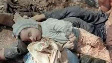 1,000 chemical war victims sent abroad annually